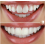 Brighter Image Lab, Adding a New Life to Your Smile
