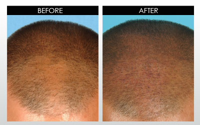 Derma-Rollers-for-Hair