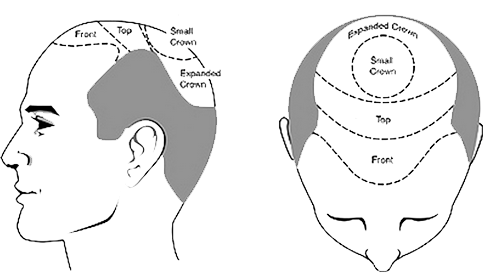 cost-of-hair-transplant-in-jaipur1