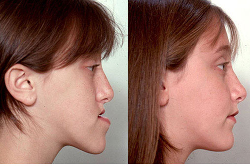 Key Facts About Reconstructive Jaw Surgery