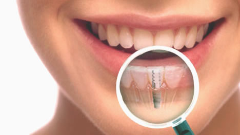 Dental Implants and Preventing Bone Loss